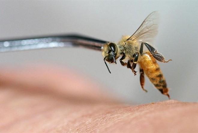 Tử vong do chữa bệnh bằng cách cho ong đốt - Lời cảnh tỉnh cho người muốn chữa bệnh bằng nọc ong - Ảnh 3.
