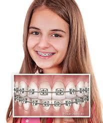 5 quan niệm sai lầm khiến trẻ bị hỏng răng ngay từ nhỏ, các bậc cha mẹ cần chú ý - Ảnh 5.