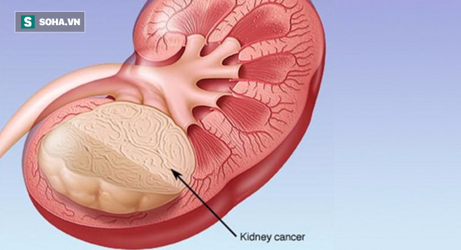 3 dấu hiệu điển hình bệnh ung thư thận: Nếu không can thiệp thì không sống được quá 1 năm - Ảnh 2.