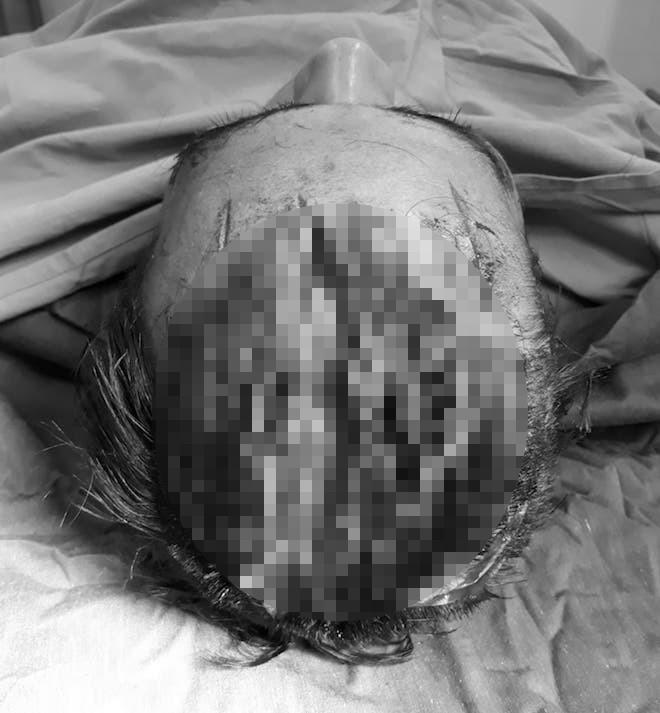 Chồng cầm dao sát hại con gái 3 tuổi rồi chém vợ nhiều nhát - Ảnh 2.