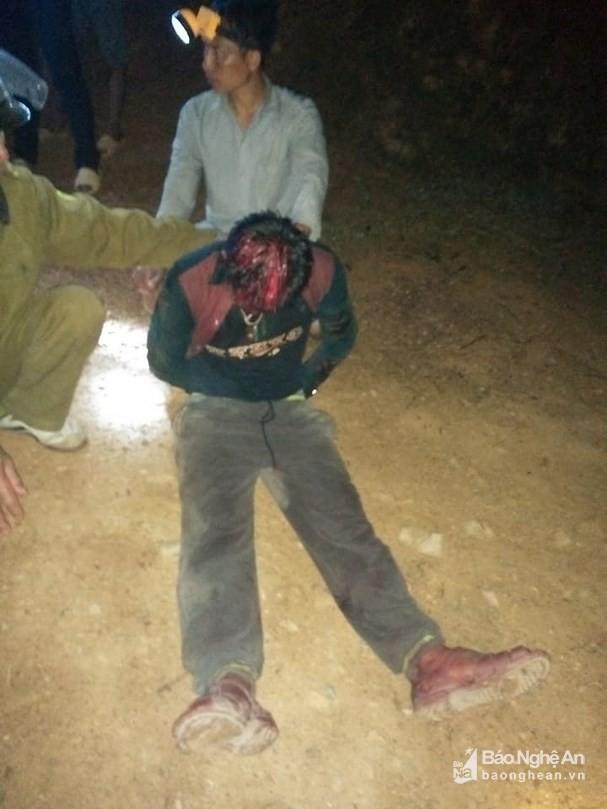 Nghệ An: Bé gái 2 tuổi bị bố dùng dao giết hại - Ảnh 1.