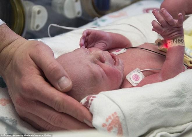Trông có vẻ là một ca sinh bình thường nhưng đây là em bé chào đời theo cách đặc biệt nhất trên thế giới - Ảnh 5.