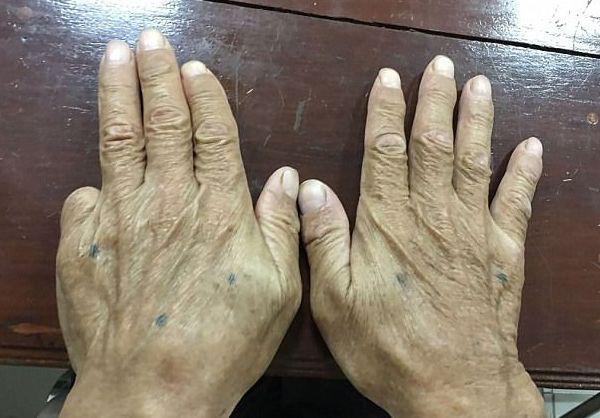 Bàn tay trái bị mất ngón út của Shigeharu Shirai.