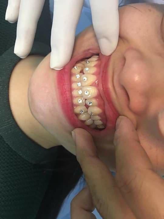 Nụ cười của nữ khách hàng khiến nha sĩ giật mình, thảng thốt - Ảnh 1.