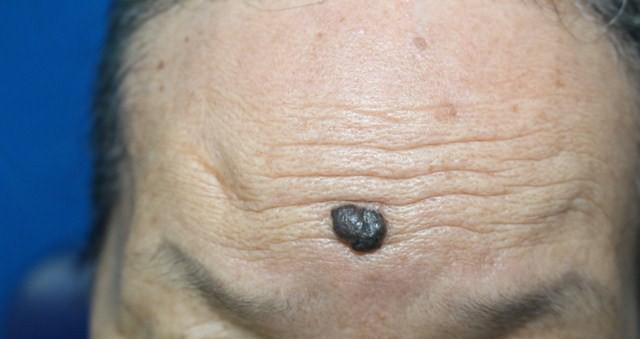 Cảnh báo gia tăng bệnh nhân ung thư da, nhiều người không biết mình mắc bệnh - Ảnh 4.