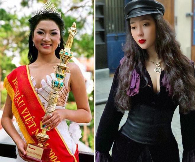 Dung mạo thay đổi của các Hoa hậu: Không dao kéo mà do thần thái, bấm huyệt, dị ứng  - Ảnh 5.