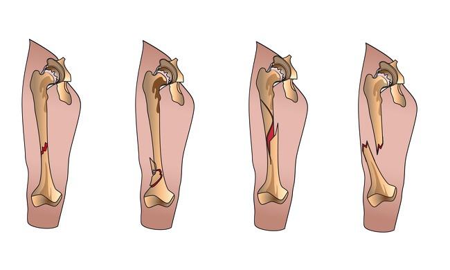 8 dấu hiệu chứng tỏ cơ thể đang bị thiếu protein và cần bổ sung ngay tức thì - Ảnh 6.