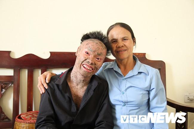 Ảnh: Người cá Ngô Văn Thọ dũng cảm livestream trên facebook để không bị hòa tan - Ảnh 18.