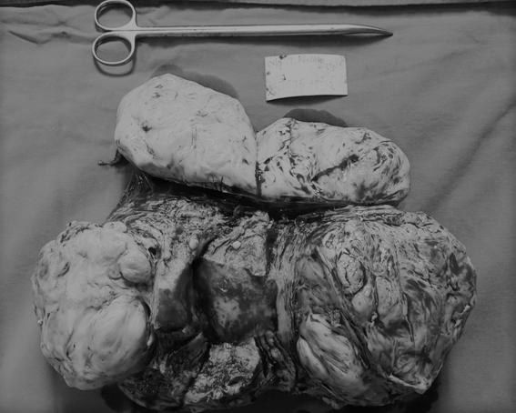 Từ ca phẫu thuật khối u nặng 7kg, bác sĩ khuyến cáo cần đi khám ngay khi có dấu hiệu này - Ảnh 1.