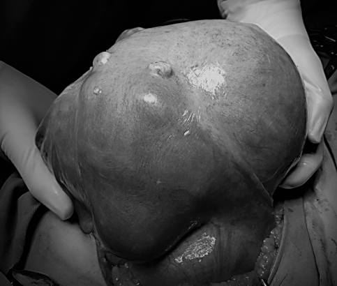 Từ ca phẫu thuật khối u nặng 7kg, bác sĩ khuyến cáo cần đi khám ngay khi có dấu hiệu này - Ảnh 2.
