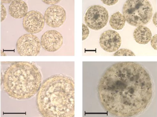 Nốt ruồi đặc biệt báo hiệu bệnh ung thư - Ảnh 1.