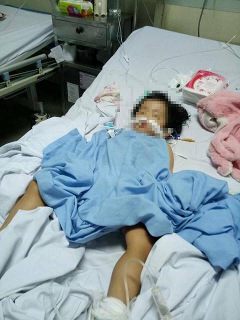 Đóng cửa cở sở mầm non không phép, nơi 1 cháu bé bị chấn thương sọ não - Ảnh 1.
