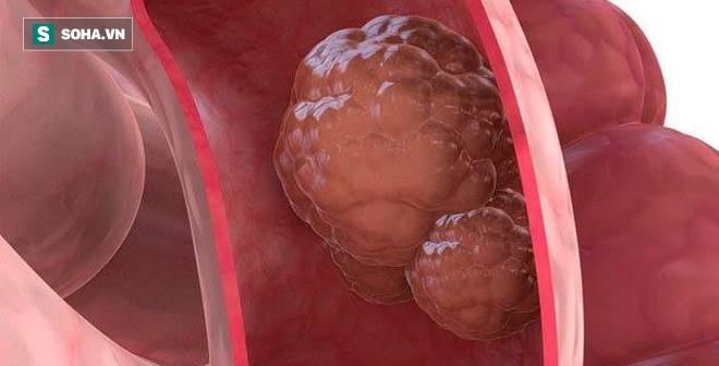 Căn bệnh ung thư xếp hàng thứ tư ở Việt Nam - thủ phạm liên quan chặt chẽ tới dinh dưỡng - Ảnh 3.