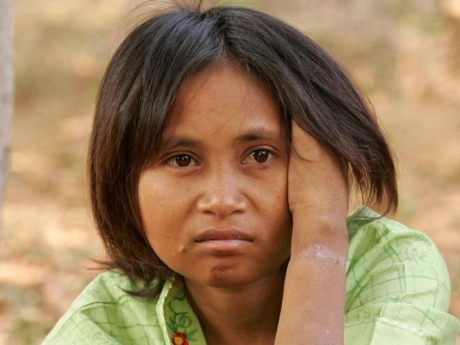 Bi kịch của những đứa trẻ rừng xanh được thú hoang nuôi dưỡng - Ảnh 6.