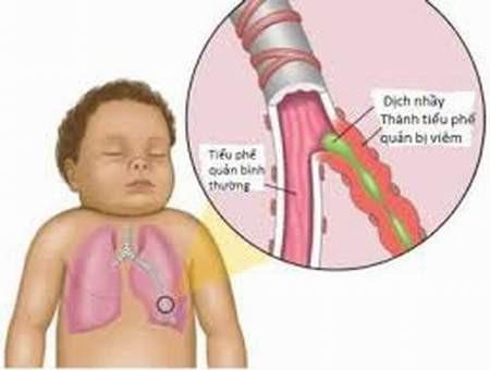Viêm phổi ở trẻ nhỏ khi thời tiết thất thường - Ảnh 1.