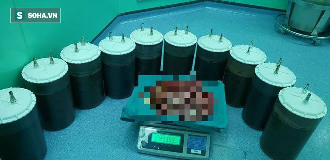 Cận cảnh khối u nặng nhất Việt Nam của người phụ nữ ở An Giang: Nặng 48kg, chứa 48l dịch - Ảnh 2.