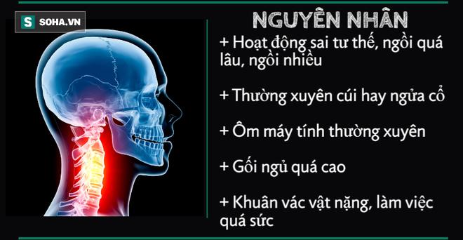 10 cấp độ thoái hóa đốt sống cổ: Hãy xem bạn bị mức mấy để xử lý trước khi bệnh nặng lên - Ảnh 1.