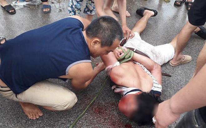 Công an thông tin vụ người đàn ông nghi bắt cóc trẻ em bị dân đánh bầm dập - Ảnh 1.