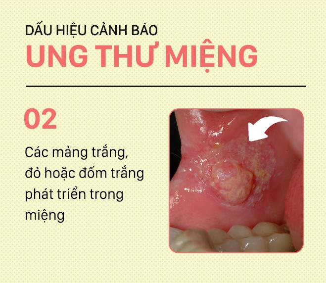 [PHOTOSTORY] Đừng nhầm lẫn với bệnh ở miệng, đây là những dấu hiệu cảnh báo ung thư mà bạn nên nhớ - Ảnh 2.