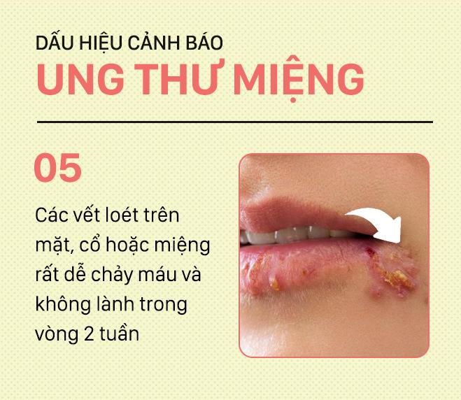 [PHOTOSTORY] Đừng nhầm lẫn với bệnh ở miệng, đây là những dấu hiệu cảnh báo ung thư mà bạn nên nhớ - Ảnh 5.