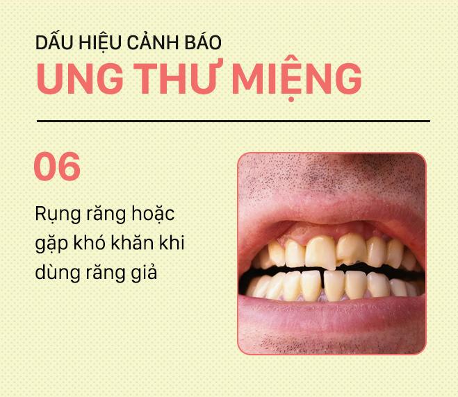 [PHOTOSTORY] Đừng nhầm lẫn với bệnh ở miệng, đây là những dấu hiệu cảnh báo ung thư mà bạn nên nhớ - Ảnh 6.