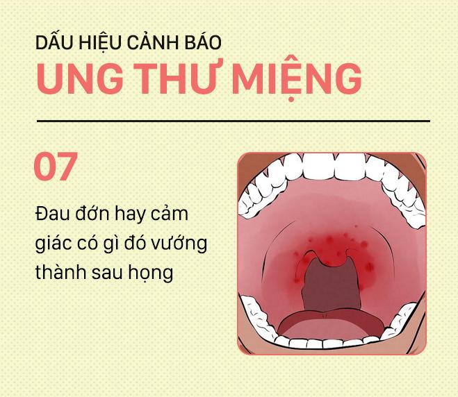 [PHOTOSTORY] Đừng nhầm lẫn với bệnh ở miệng, đây là những dấu hiệu cảnh báo ung thư mà bạn nên nhớ - Ảnh 7.