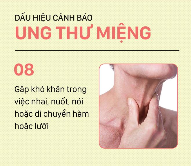 [PHOTOSTORY] Đừng nhầm lẫn với bệnh ở miệng, đây là những dấu hiệu cảnh báo ung thư mà bạn nên nhớ - Ảnh 8.