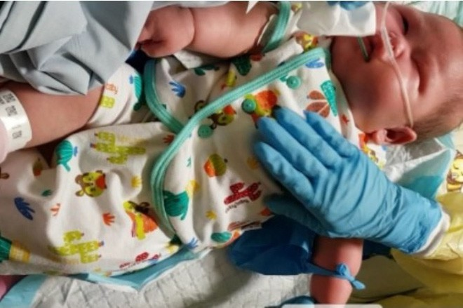 Em bé bị hơn 30 cơn co giật mỗi ngày và được bác sĩ chẩn đoán mắc phải hội chứng cực hiếm gặp - Ảnh 1.