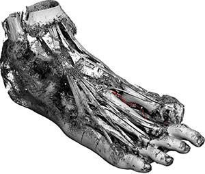 Tollund Man - Bí ẩn xác ướp 2.400 năm tuổi vẫn mỉm cười dù bị treo cổ đến chết - Ảnh 7.