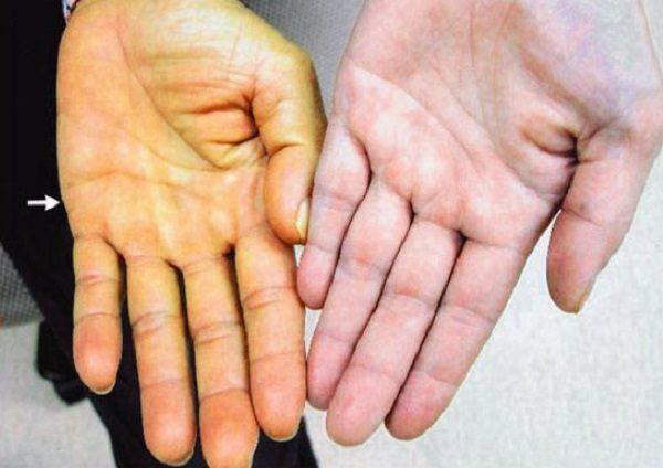 Những triệu chứng cảnh báo viêm gan B - Ảnh 2.