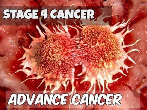 Clip cho thấy ung thư di căn phát triển như thế nào và phá hủy cơ thể người bệnh ra sao - Ảnh 4.