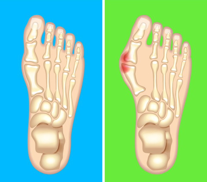 Nhìn ngay xuống bàn chân soi dấu hiệu bệnh tật cư trú trong người: Số 3 rất nguy hiểm! - Ảnh 7.
