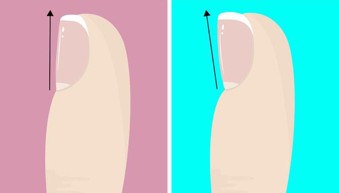 Nhìn ngay xuống bàn chân soi dấu hiệu bệnh tật cư trú trong người: Số 3 rất nguy hiểm! - Ảnh 2.