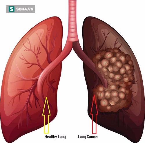 Ung thư phổi gây tử vong số 1: Những dấu hiệu cảnh báo sớm tuyệt đối không nên lờ đi - Ảnh 1.