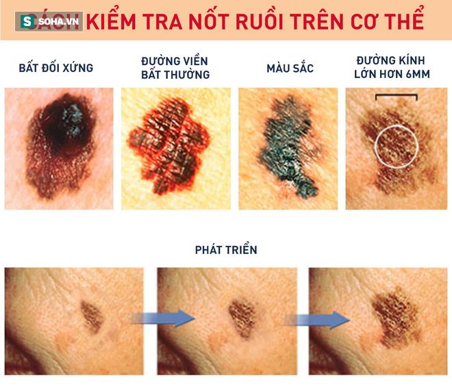 Chuyên gia hướng dẫn cách kiểm tra nốt ruồi trên cơ thể có khả năng gây ung thư hay không - Ảnh 1.