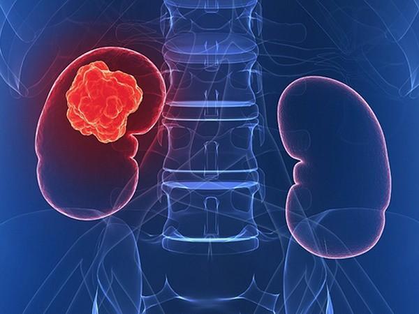 Các triệu chứng thường gặp của bệnh ung thư thận - Ảnh 1.