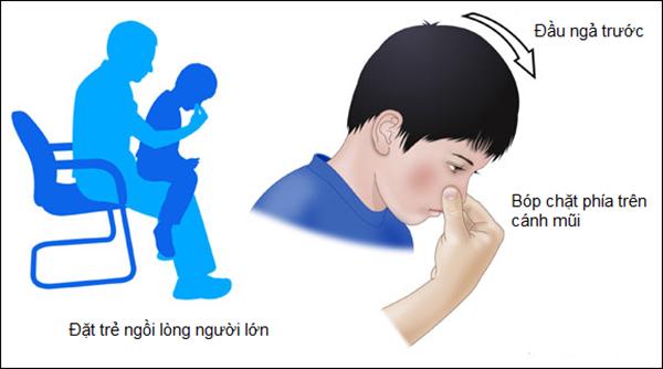 Cảnh báo: Trẻ bị chảy máu cam có thể nguy hiểm tính mạng nếu cứ ngửa đầu ra sau - Ảnh 4.