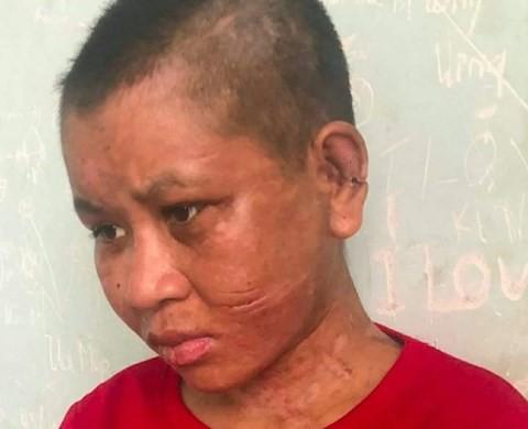 Cô gái tố bị chủ tra tấn: Bà chủ dùng cả cây gỗ đã đóng đinh đập lên đầu, lên mặt - Ảnh 1.