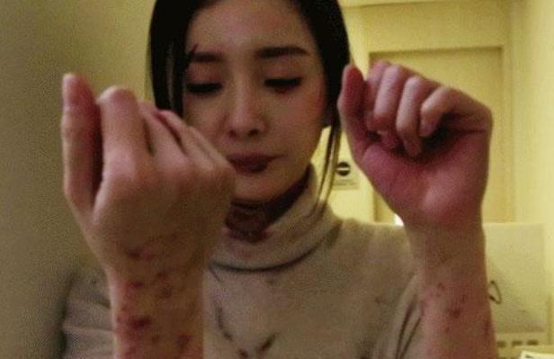 Sao Hoa ngữ mạo hiểm quay cảnh hành động không thế thân: Lưu Thi Thi suýt bị treo cổ, Lưu Diệc Phi mang thương tật suốt đời - Ảnh 6.