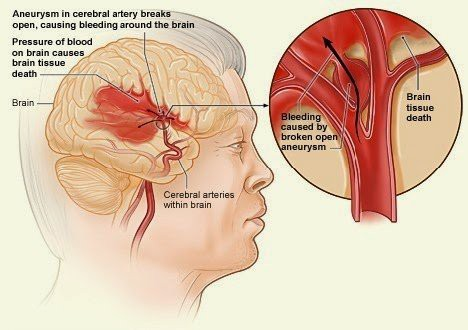 Đột quỵ hay xảy ra vào sáng sớm: Dừng ngay thói quen này để chặn đứng nguy cơ - Ảnh 2.