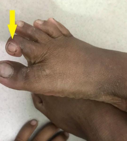 Cháu bé 7 tuổi bị rắn độc cắn không cầm được máu - Ảnh 1.