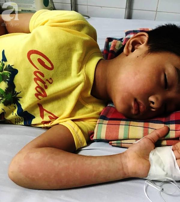 Hà Nội: Bé trai 7 tuổi đang khỏe mạnh bỗng hôn mê vì suy đa tạng, nhiễm trùng máu sau trận sốt cao - Ảnh 1.