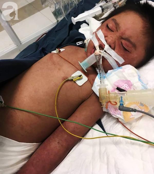 Hà Nội: Bé trai 7 tuổi đang khỏe mạnh bỗng hôn mê vì suy đa tạng, nhiễm trùng máu sau trận sốt cao - Ảnh 5.