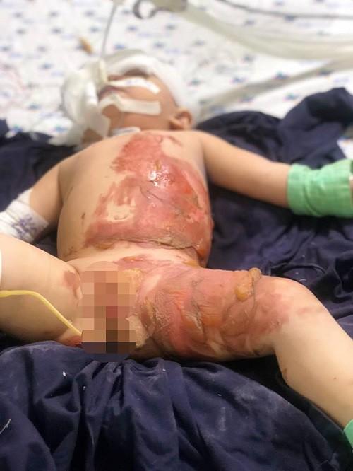 Bé gái 20 tháng tuổi bị lột tróc da do bỏng nước sôi - Ảnh 1.