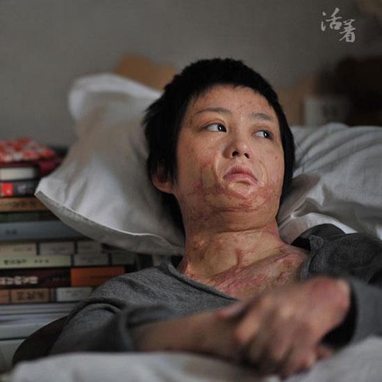Cả gan từ chối tình cảm thiếu gia tài phiệt, cô gái bị thiêu sống tại chỗ và trải qua 7 năm đau đớn về thể xác lẫn tinh thần - Ảnh 3.