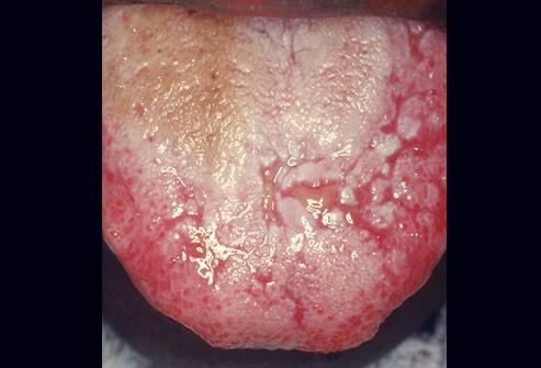 10 bệnh thường gặp ở miệng: Cái số 5 và 6 có thể biến thành ung thư, ai cũng nên cảnh giác - Ảnh 6.