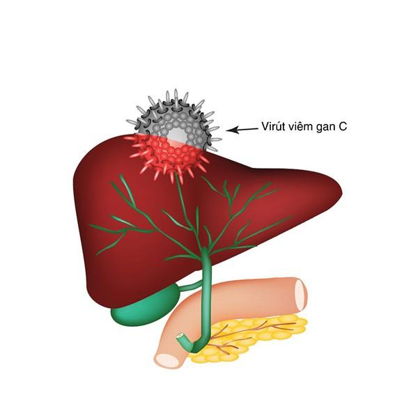 Viêm gan siêu vi C và các biến chứng thường gặp - Ảnh 1.