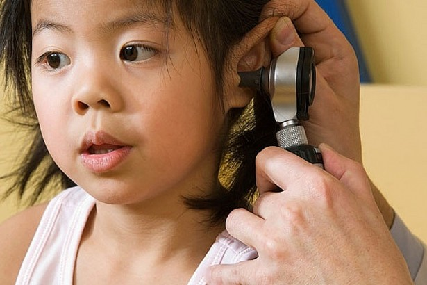 Chuyên gia tai mũi họng cảnh báo: Trẻ bị liệt mặt, điếc vì viêm tai giữa đang gia tăng - Ảnh 2.