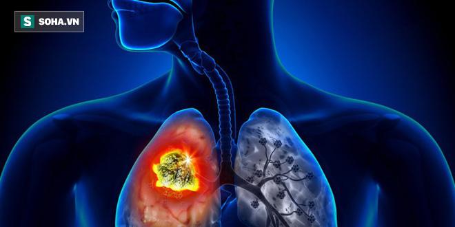 Xu hướng người trẻ tuổi mắc ung thư phổi đang tăng nhanh: Làm sao để phát hiện sớm nhất? - Ảnh 1.