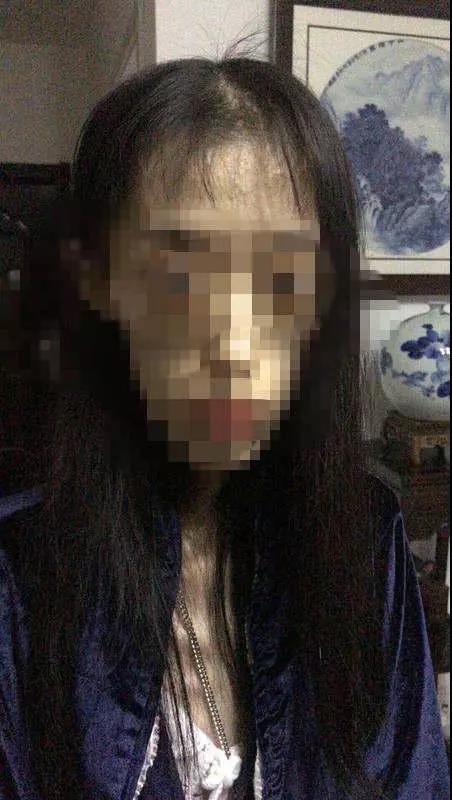 3 năm cầm chocolate chỉ để ngửi, cô gái 21 hóa bà lão 60, cơ thể chi chít vết bầm, suýt mất mạng vì 2 lần xuất huyết não - Ảnh 1.